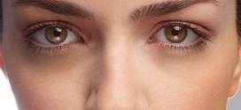 Occhiaie cause e rimedi naturali