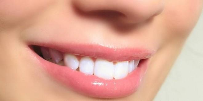 Afta in bocca, sulla lingua o gengivale - cause, sintomi e rimedi naturali