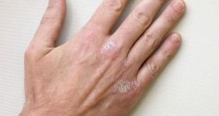 Psoriasi - cause sintomi rimedi naturali alimentazione