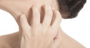 Seborrea: sintomi, cause, rimedi naturali, alimentazione e consigli