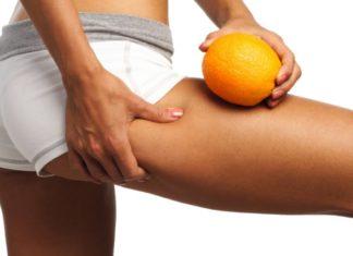 Cellulite: che cos'è, cause, trattamenti medici estetici e trattamenti naturali. Scopri le cause della cellulite e i più efficaci trattamenti medici estetici o trattamenti naturali per combattere la cellulite.