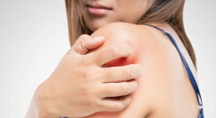 Dermatite atopica: cos'è, cause, sintomi, alimentazione consigliata e rimedi naturali. Scopri le cause della dermatite atopica, i rimedi naturali più efficaci, l'alimentazione consigliata ed alcuni consigli utili per curare la dermatite atopica.