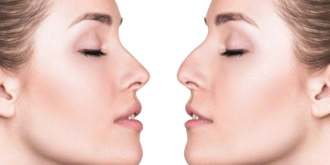 Rinoplastica: cos'è, come si esegue, consigli, rischi e costi. La rinoplastica è un intervento chirurgico tramite cui si rimodella il naso. Le ragioni per cui si sceglie di eseguirla possono essere di natura estetica o per via di problemi legati alla respirazione.
