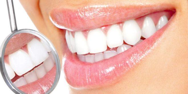 Sbiancamento denti fai da te: metodi naturali efficaci e consigli. Scopri le cause dei denti gialli ed i più efficaci metodi per sbiancare i denti in casa in modo naturale.